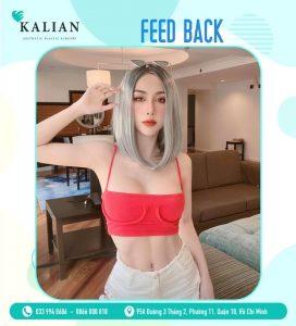 Dịch vụ nâng ngực thẩm mĩ tại thẩm mỹ viện Kalian uy tín, an toàn