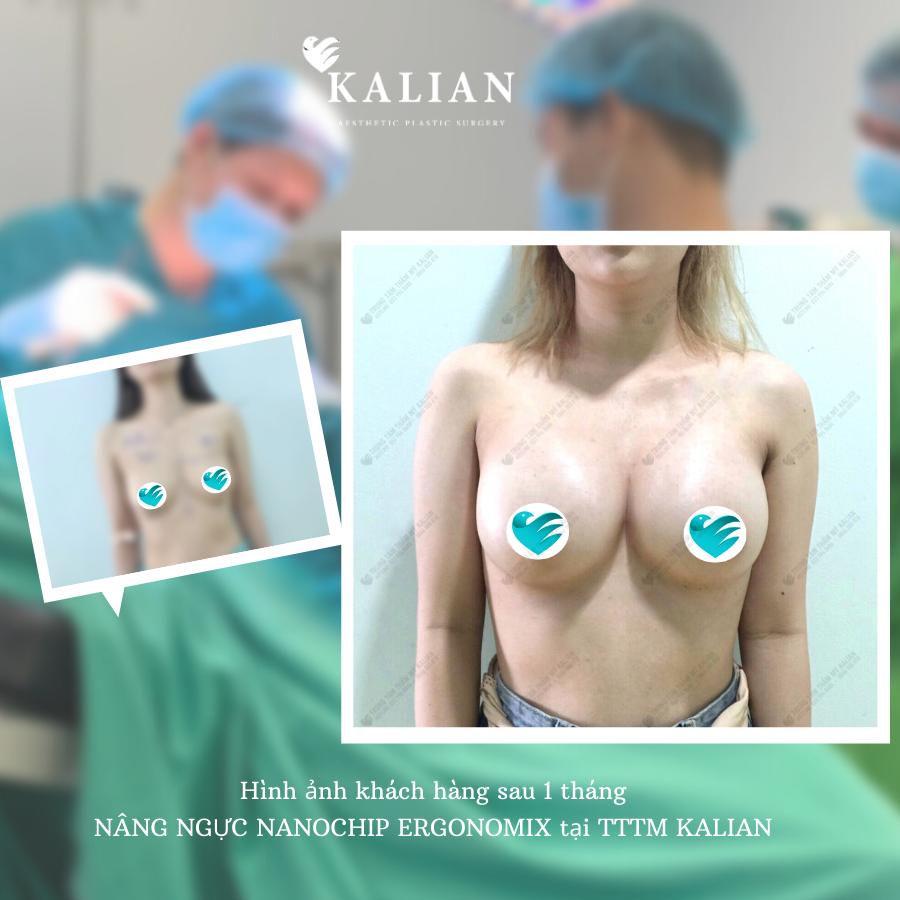 Hình ảnh trước và sau khi thực hiện nâng ngực tại Kalian 1
