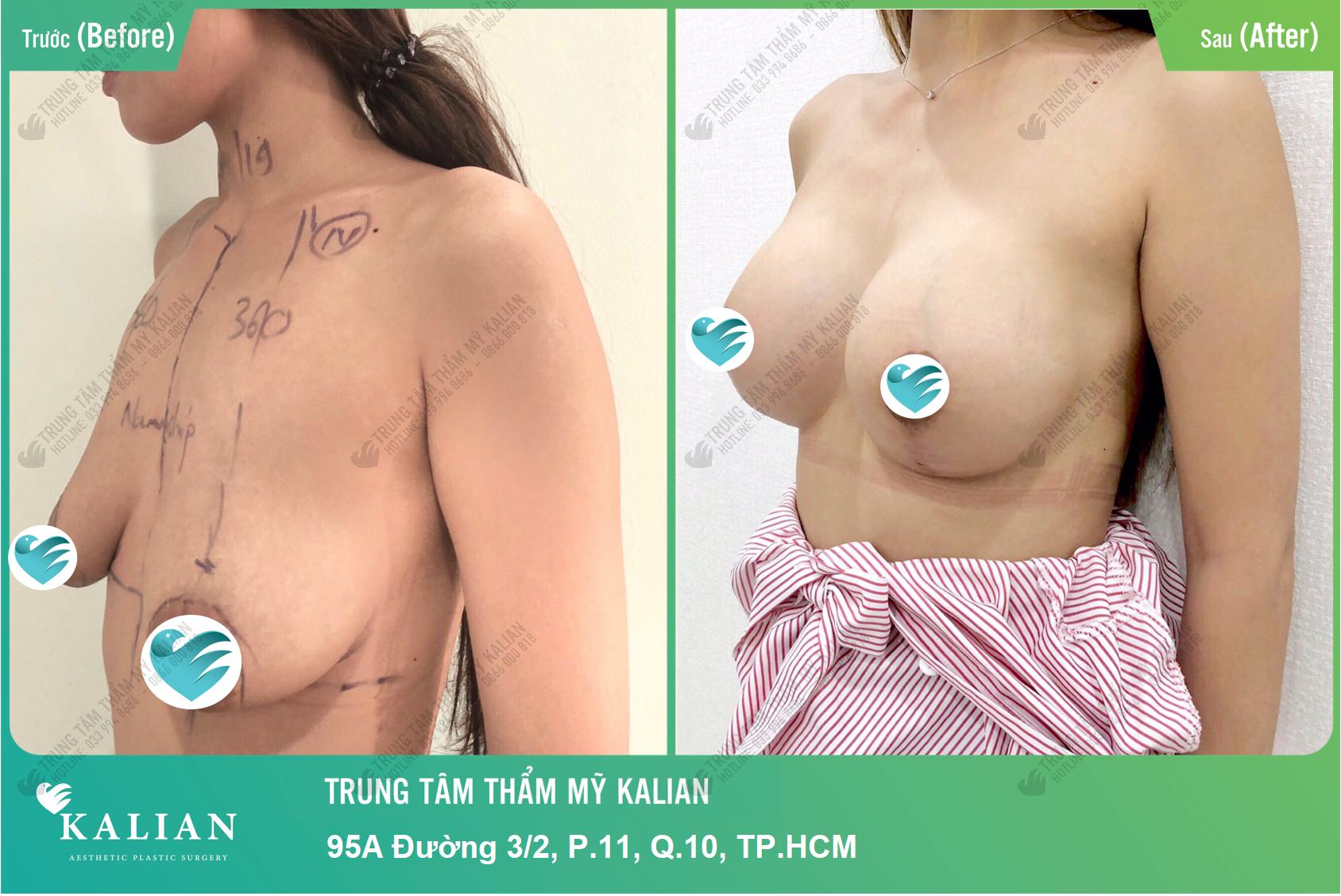 Dịch vụ nâng ngực nội soi trung tâm thẩm mỹ Kalian