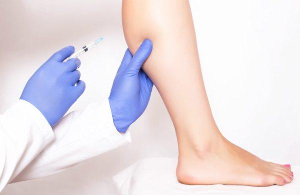 Những thông tin cần biết về hút mỡ bắp chân