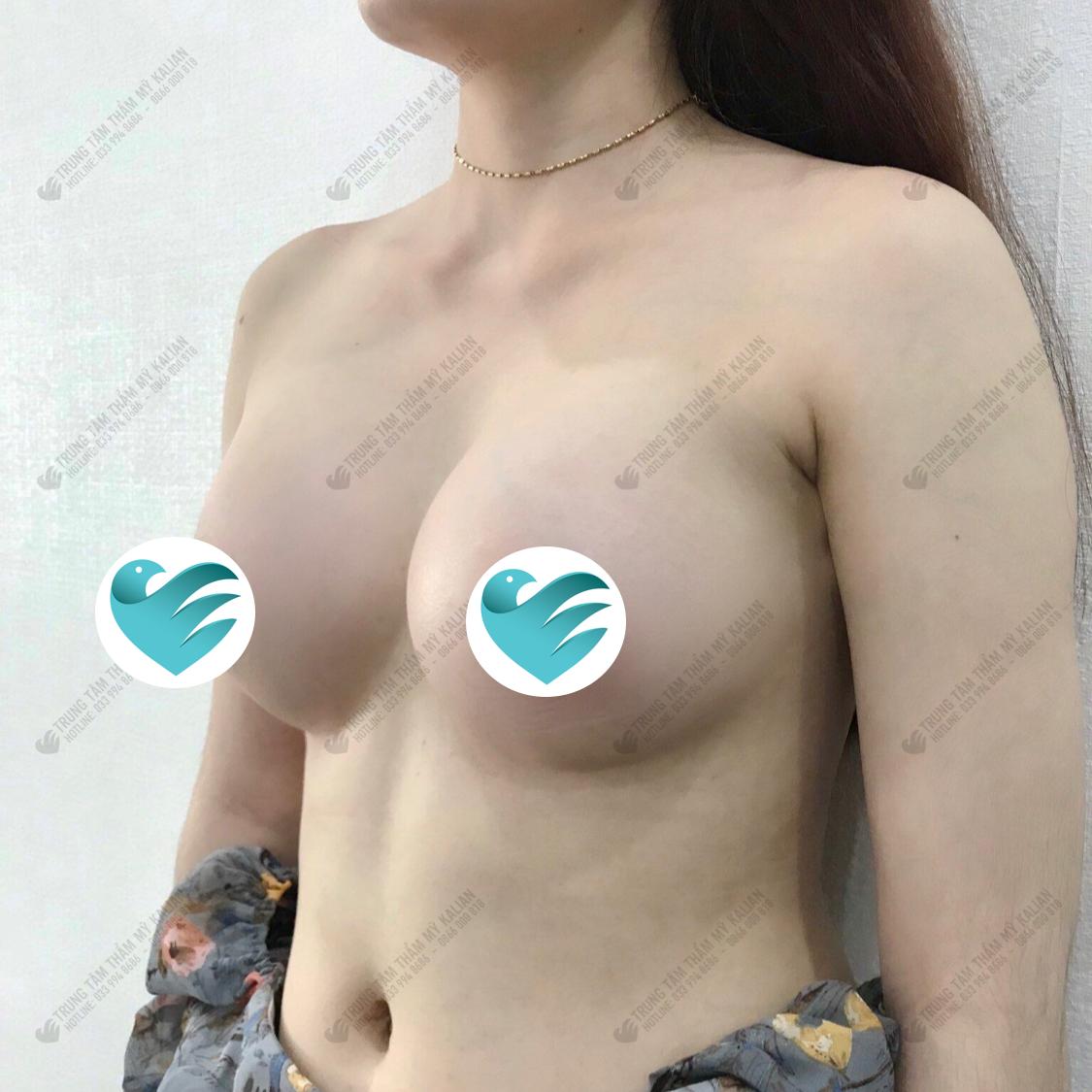 khách hàng sau khi nâng ngực