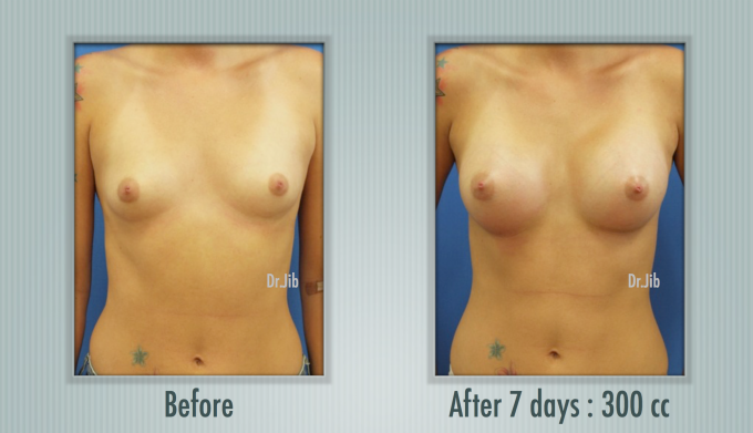hình ảnh trước và sau phẫu thuật ngực