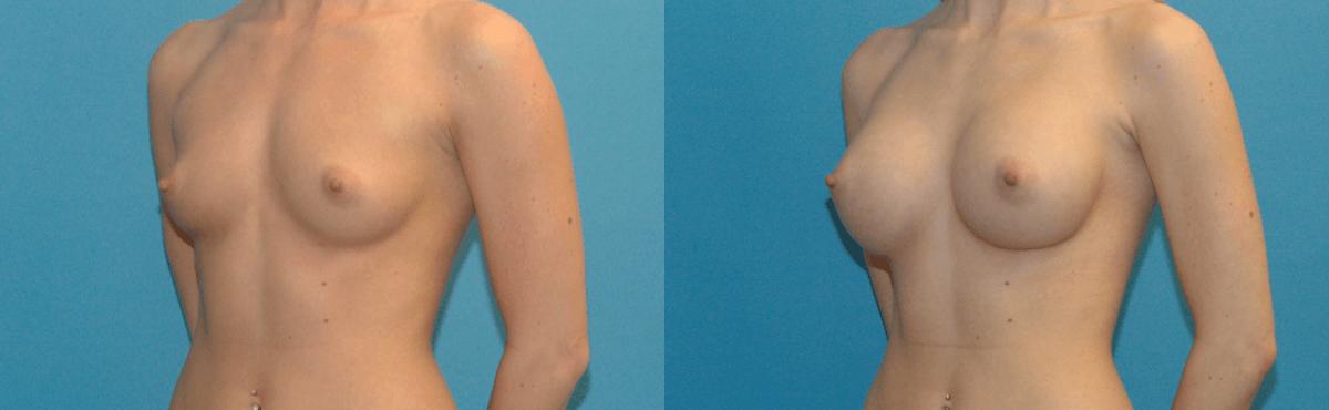Phẫu thuật nâng ngực nội soi giá bao nhiêu tại Việt Nam