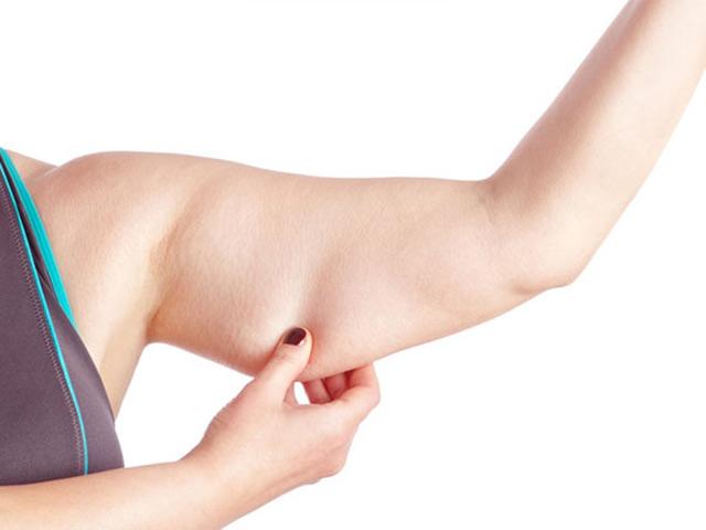 hút mỡ bắp tay Bác sĩ Việt