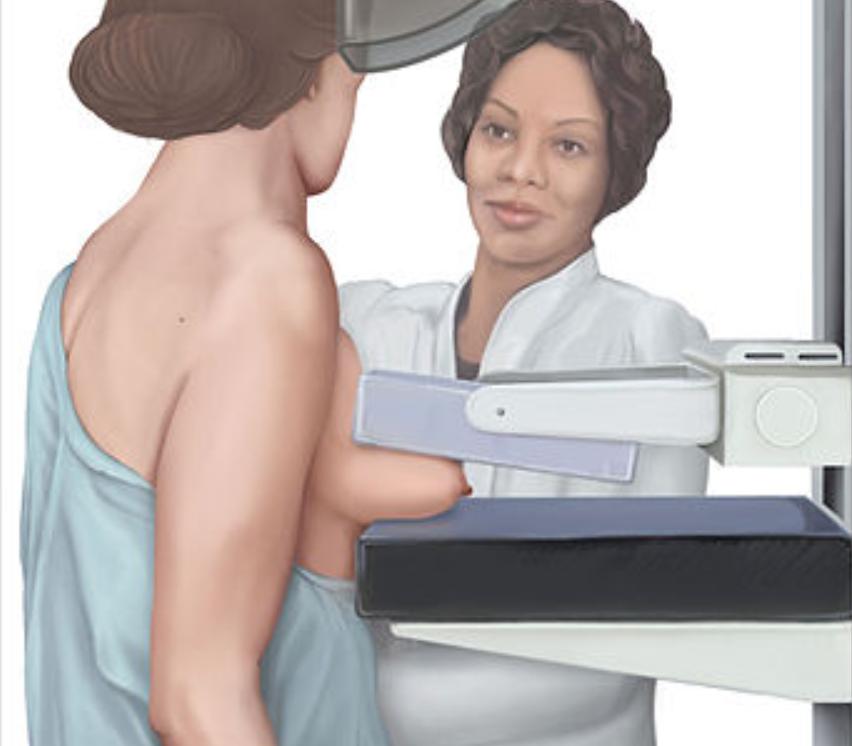 chụp x quang ngực - nâng ngực chảy xệ
