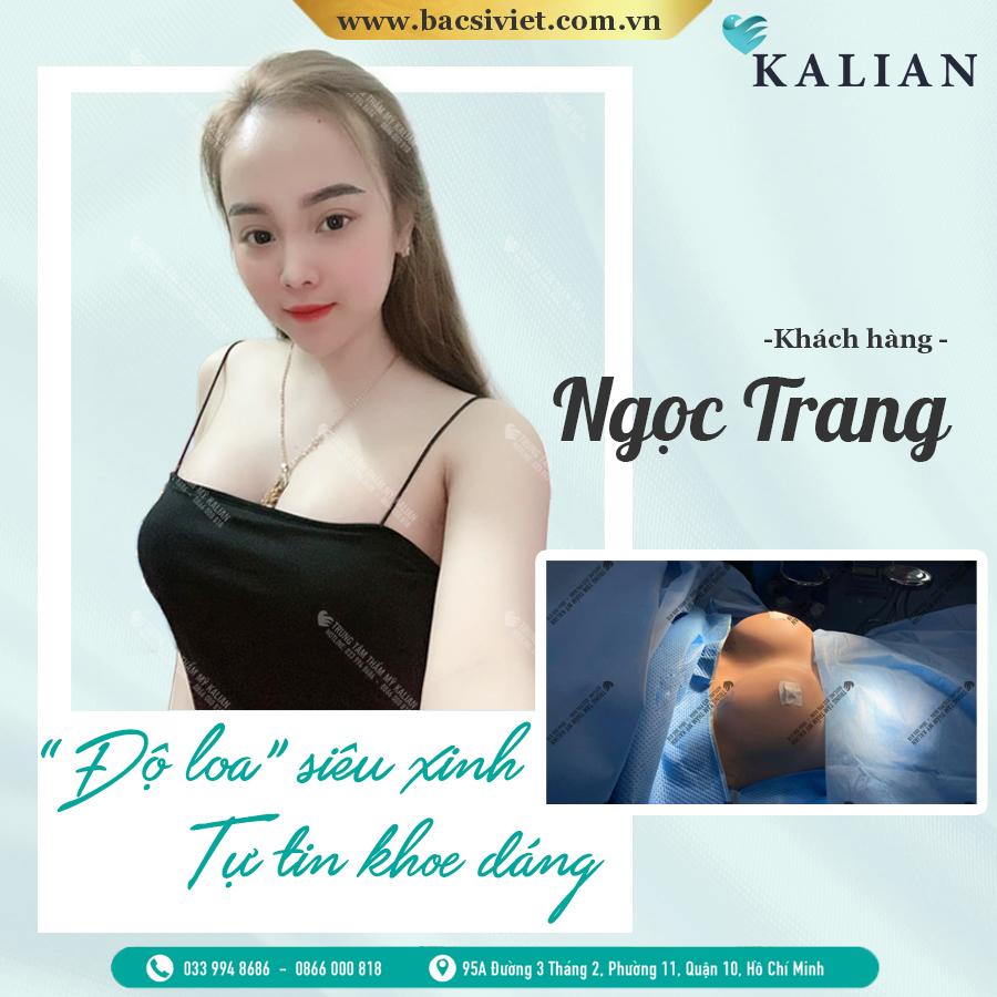 HÌnh nảnh nâng ngực nội soi 5