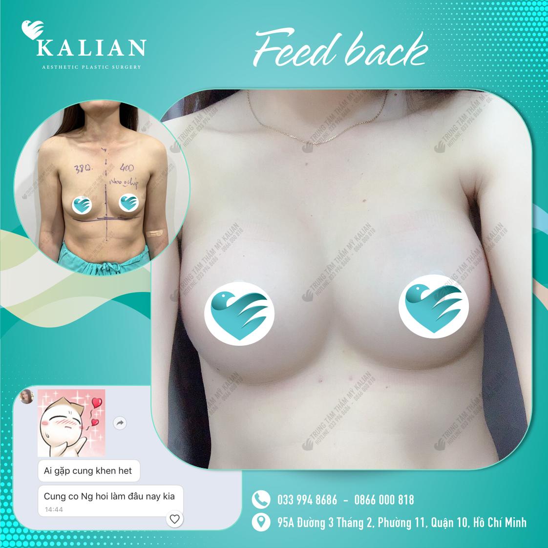 nâng ngực nội soi Bác sĩ Việt
