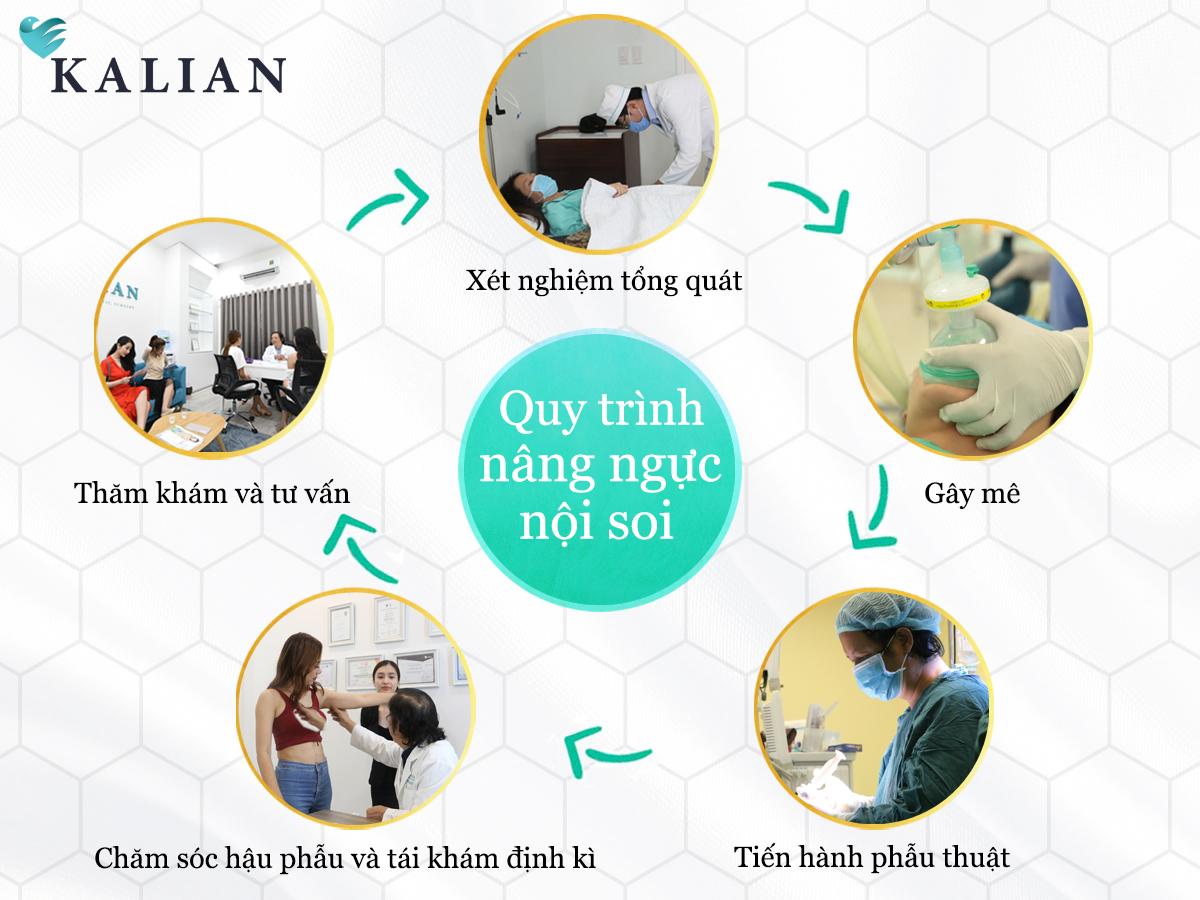 quy trình nâng ngực bác sĩ Việt