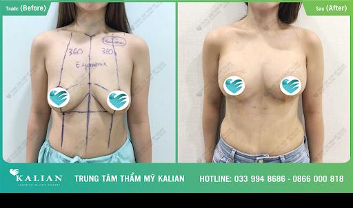 Nâng ngực chảy xệ bác sĩ Việt