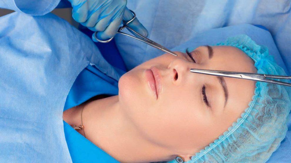 nâng mũi cấu trức bác sĩ Việt